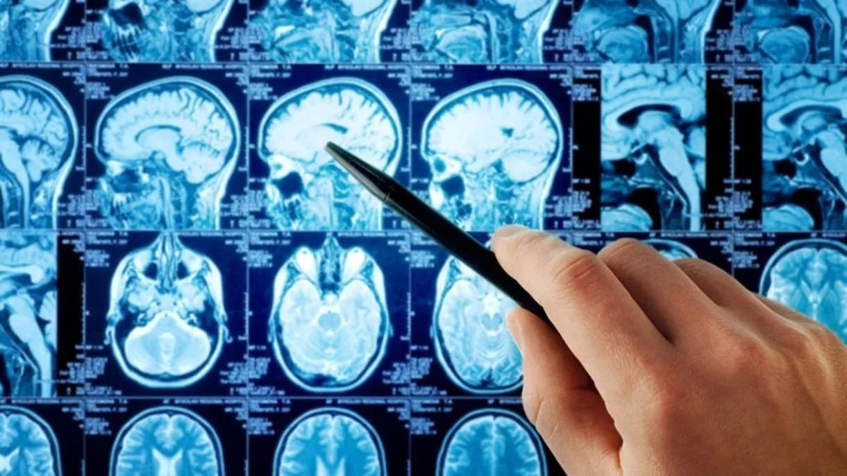 W czasach pandemii, skan mózgu będzie czynnikiem decydującym o przyjęciu do pracy