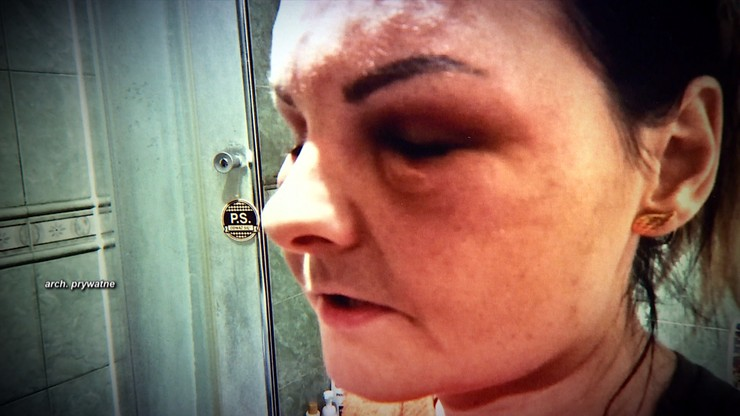 Koszmarne zabiegi kosmetyczne. Ryzykowały zdrowiem